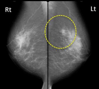 乳腺散在の乳腺です。 やはり左上に腫瘤があります。 こちらは腫瘤の存在がよく見えます。