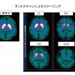 脳DATスキャンのご紹介