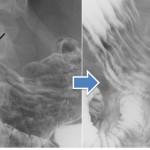 胃X線検査の透視観察
