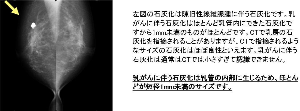 化 マンモグラフィー 石灰