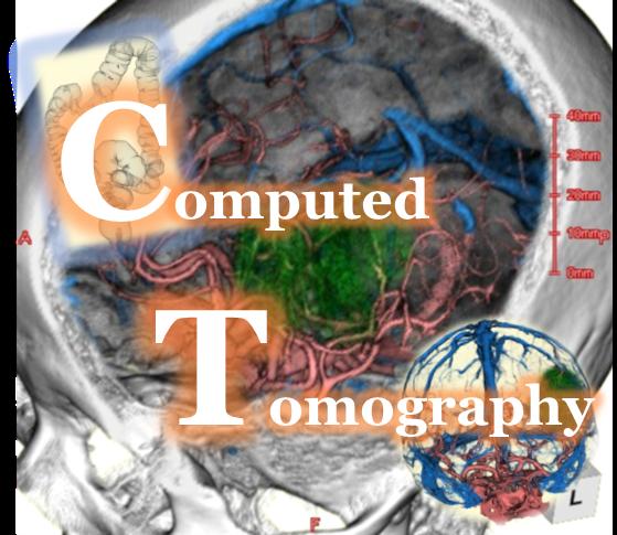 3DCT画像とその成り立ちについて