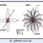 IMRT(Intensity Modulated Radiation Therapy)とは?