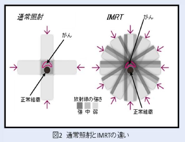 IMRT1