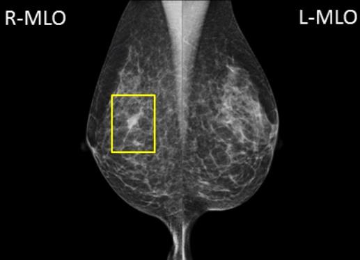 写真3 乳腺散在の背景乳腺 写真3の右MLO 黄色で囲った部分が対側に比べ白く描出されています。局所的非対称性陰影、カテゴリー3と判定されます。トモシンセシスでみると、乳腺の重なりと判定できました。精密検査の際は超音波検査も行います。非対称性陰影と考えられた部位には、超音波検査では病変を認めませんでした。超音波検査もこのような所見の鑑別診断には有効な手段です