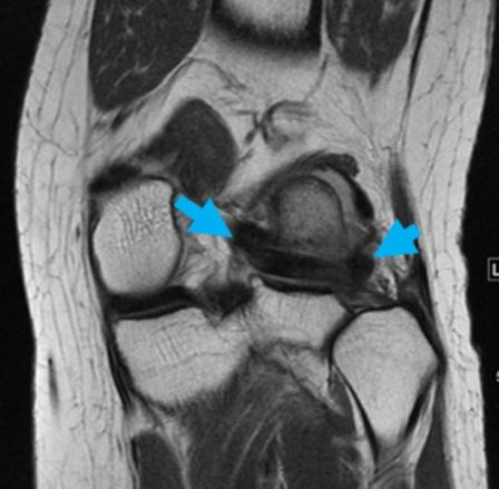 図2-1:プロトン強調冠状断像