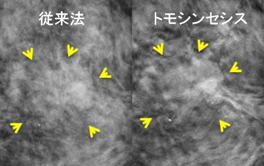 写真2 従来法とトモシンセシス