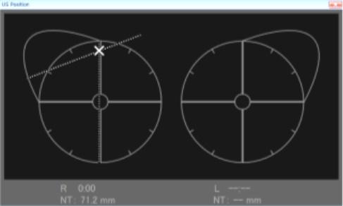図1 Mammodite®(Netcamsystems)