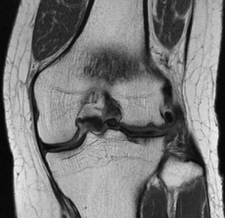 図2-2:プロトン強調冠状断像