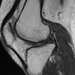 今月の症例(膝MRI)