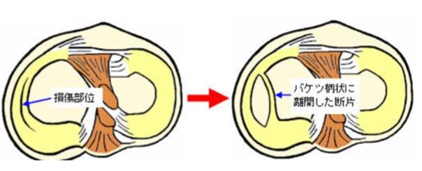 図4:バケツ柄断裂シェーマ