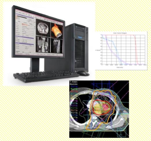 放射線治療計画装置 Pinnacle3