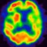 脳血流SPECT:統計解析による診断のポイントその1 ~統計解析の仕組み~