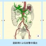 特集CT:手術支援3D画像処理