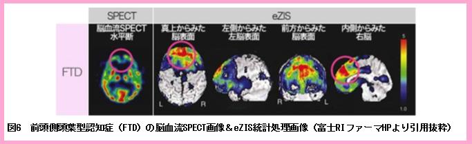 CBFpart2図6