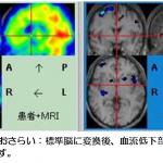 脳血流SPECT:統計解析による診断のポイント:その2~血流低下の大きさ・部位を可視化する~