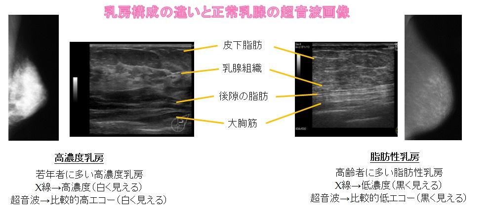 乳房構成の違いと正常乳腺の超音波画像