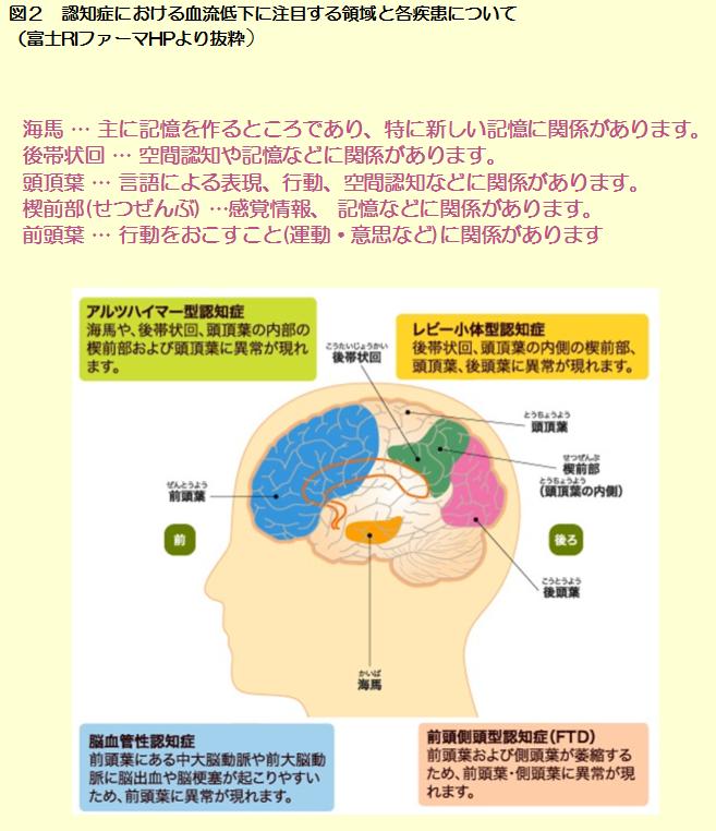CBFpart2図2