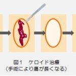 シリーズ 放射線治療適応について ケロイド