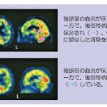 脳血流SPECT統計解析ソフトウェア (e-ZIS) が新しくなりました