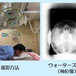 鼻骨エックス線撮影について