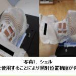 放射線治療 喉頭がんについて
