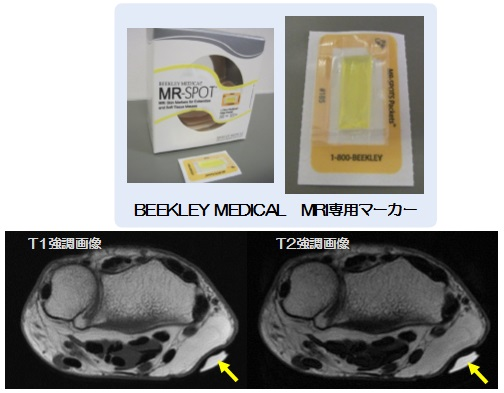 軟部腫瘍のMRI検査