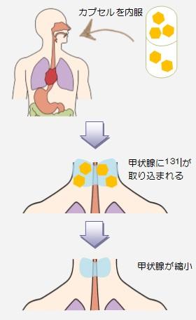 放射性ヨウ素(131I)内用療法について ~バセドウ病の治療~