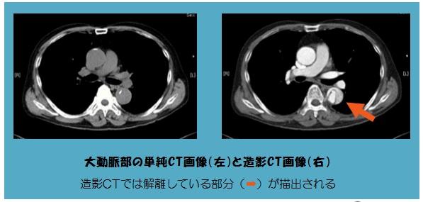 造影CTってどうやるの? 造影CTの現場をご紹介します!